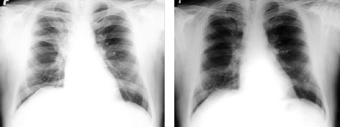 Nemalobuněčný karcinom pravé plíce před léčbou a po léčbě kombinovanou chemoterapií a souběžnou radioterapií