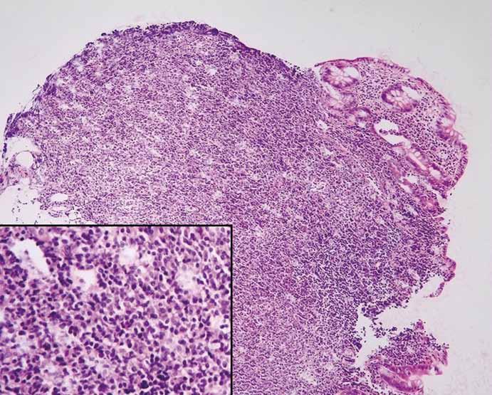 Objemný nodulární lymfoidní infiltrát CLL/SLL, na jehož povrchu jsou rezidua sliznice tlustého střeva (hematoxylin-eozin, původní zvětšení 100×). Infiltrát CLL/SLL sestává z malých a středně velkých lymfoidních elementů, které destruují sliznici tlustého střeva (vložený detail, hematoxylin-eozin, původní zvětšení 400×). Fig. 3. Nodular lymphatic CLL/SLL infiltrate covered with remnats of colonic mucosa (hematoxylin-eosin, 100× magnification). The infiltrate consists of smalland medium-sized lymphatic elements destructing intestinal mucosa (detail, 400× magnifi cation)