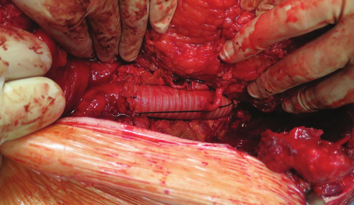 Náhrada s implantací levé renální tepny Fig. 3: Aortic replacement with left renal artery implantation