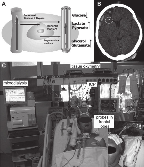 Fig. 1: Microdialysis in neurointensive care 1A. The principle of a microdialysis probe (right), mimicking a brain blood vessels (left). The semi-permeable membrane of the microdialysis probe allows for diffusion of metabolites into the probe, being delivered via the perfusion fluid into a microvial, which is then analyzed. Glucose and oxygen are delivered to the brain. In case of ischemia, the concentration of glucose decreases, while the concentrations of lactate and pyruvate increase. More severe ischemia results in cellular membranes degradation, resulting in increased glycerol. 1B. A CT scan of a patient with acute subdural hematoma associated with contusion in the right frontal lobe and implanted ICP, tissue oxymetry and microdialysis probes (inside the white circle). 1C. Multimodal monitoring at the intensive care unit (ICU). A patient with two sets of probes implanted in frontal lobes. In detail: A patient with an implanted microdialysis probe at the Neuro-ICU. Microdialysis pump propels the perfusion fluid, and later it is collected in microvials, which are analyzed every 60 minutes.