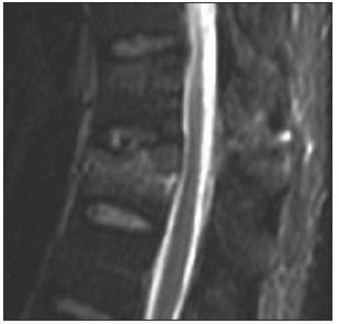 MR ve STIR-módu v sagitální rovině ve střední čáře. Muž, 37 let, fraktura obratle Th12 typu A3.3.2. Poranění disku 4. stupně dle Onera. Pacient byl indikován k izolované přední stabilizaci (Skupina 3).