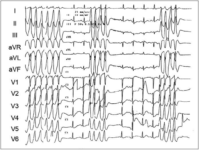 Ukázka repetitivních běhů idiopatické KT. V EKG-obrazu je patrna přechodní zóna ve V<sub>2</sub> s úplnou pozitivitou QRS ve svodu V<sub>3</sub>. Arytmie pocházela z fokusu přístupného z kapsičky pulmonální chlopně.