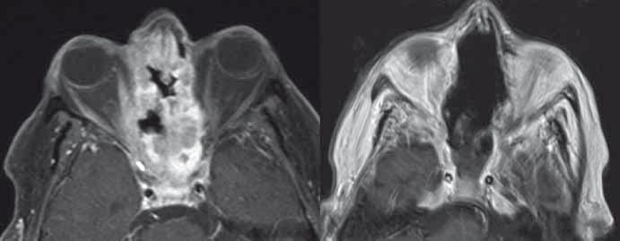 Adenokarcinom etmoidů a dutiny nosní s invazí do mediálních stěn očnic a baze přední jámy lební před (vlevo, T1 vážená sekvence MR s potlačením tuku a podáním kontrastní látky) a po radikální resekci (vpravo, T1 vážená MR sekvence s podáním kontrastní látky).