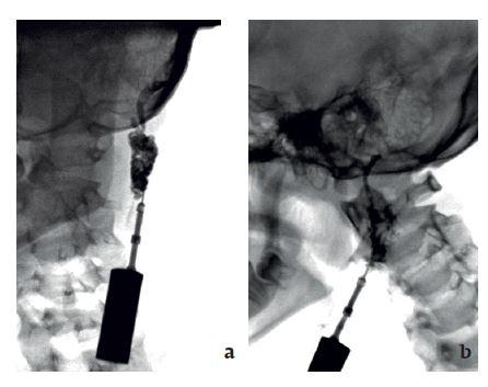 Obr. 3a, b Fistulografie u 11leté pacientky: cervikoaurální píštěl vlevo.