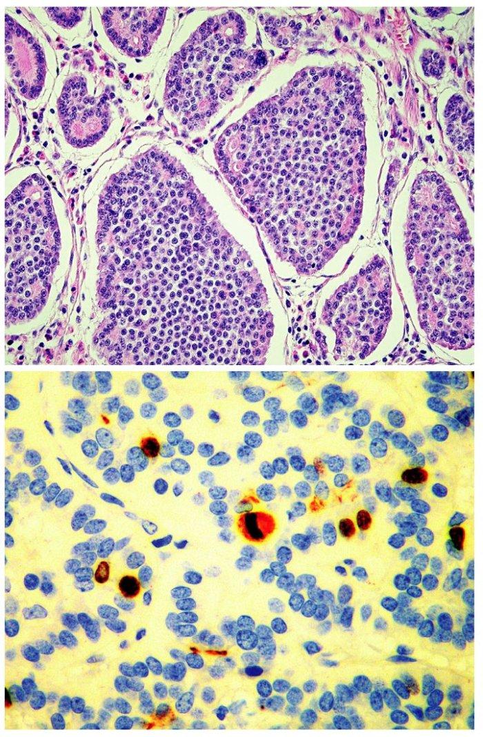 Dobře diferencovaný neuroendokrinní karcinom. Solidní hnízda nádorových buněk a ojedinělé tubulární struktury. H&E, 40krát (A), cca 4% nádorových buněk vykazuje jadernou pozitivitu Ki-67, nález odpovídá G2. 200krát (B)