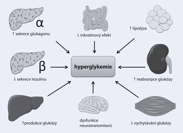 Patofyziologické poruchy přispívající ke vzniku a průběhu diabetu 2. typu.