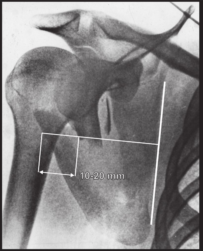 Měření dislokace úlomků laterálního okraje těla lopatky: a – angulace; b – translace;  c – medio-laterální posun. Fig. 5: Measuring of displacement of fragments of lateral border of scapular body: a – angulation;  b – translation; c – medio-lateral displacement.