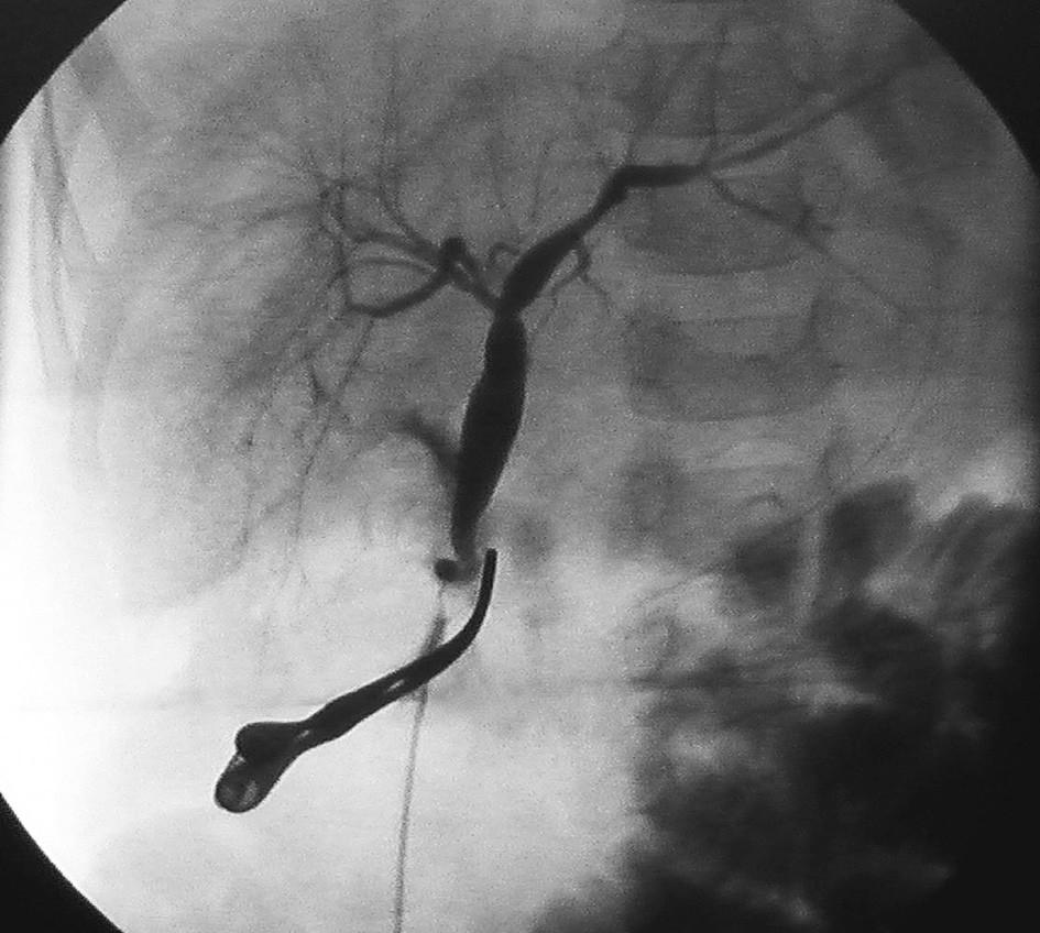 Peroperačná cholangiografia s dilatáciou intrahepatálnych žlčovodov Fig. 5. Peroperative cholangiography shows dilatation of intrahepatic ducts