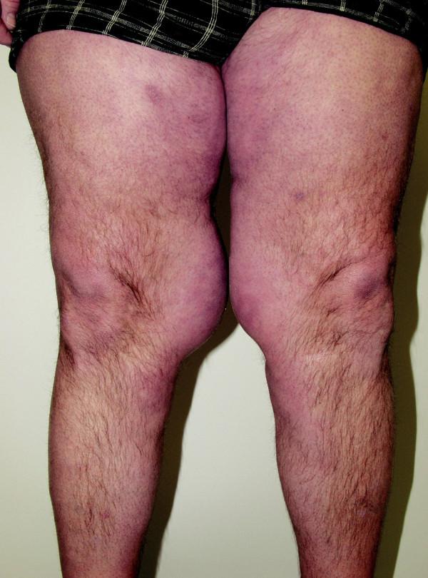 Detail tukových depozit na stehnech.