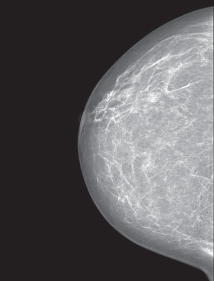 Mamogram – nízce denzní žláza Tabár II