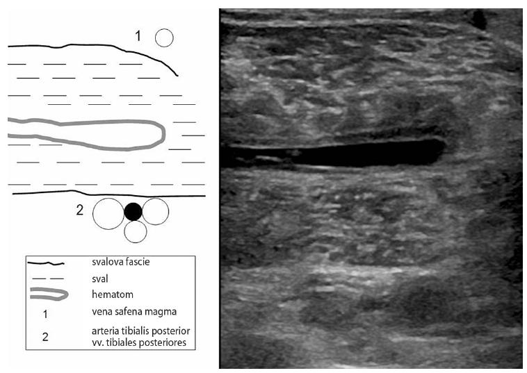 Krvácení do m. gastrocnemius medialis a trombóza vv. tibiales posteriores