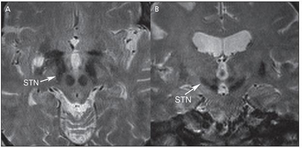 Obr. 6. Nucleus subthalamicus (STN). a) horizontální řez b) koronální řez. Šipky označují STN jádro.