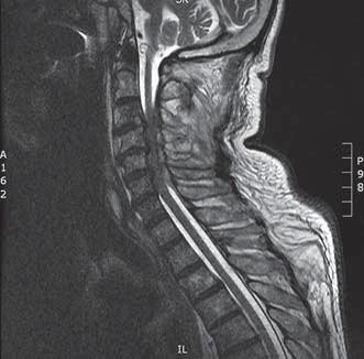 Kazuistika 2 – MR. Sagitální T2 vážený obraz, lehká krční lordóza, spinální stenóza C3–6, dorzální epidurální abscesy C3–6 s útlakem míchy.