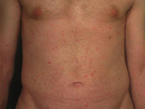 Psoriaziformná kožná erupcia u pacienta so psoriázou počas liečby infliximabom imitujúca psoriasis guttata