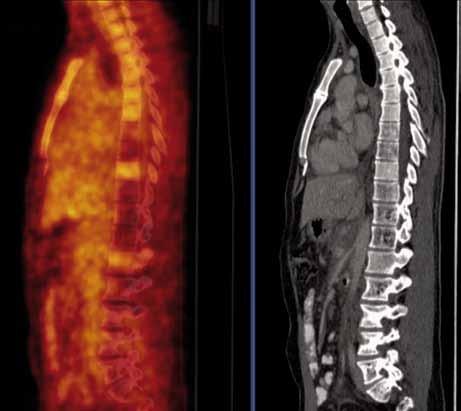 PET/CT vyšetření s podáním i.v. kontrastu provedené v září 2010. Jsou patrny četné hemagiomy patrné v obratlích Th (Th7,8 a Th10-12) a LS (L4-S1) páteře a levé kosti kyčelní, v těchto místech detekujeme sníženou metabolickou aktivitu, která nedosahuje ani fyziologické aktivity v okolních nepostižených obratlích (obr. 18).