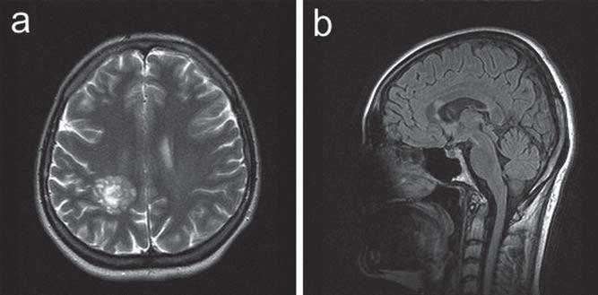 Kazuistika 2: kontrolní MR vyšetření s odstupem tří měsíců. a) T2 vážený obraz v axiální rovině. Ložisko vpravo parietálně přetrvává, nyní již bez perifokálního edému. b) FLAIR zobrazení v sagitální rovině ukazuje další drobnější ložisko v rostrální části kalózního tělesa.