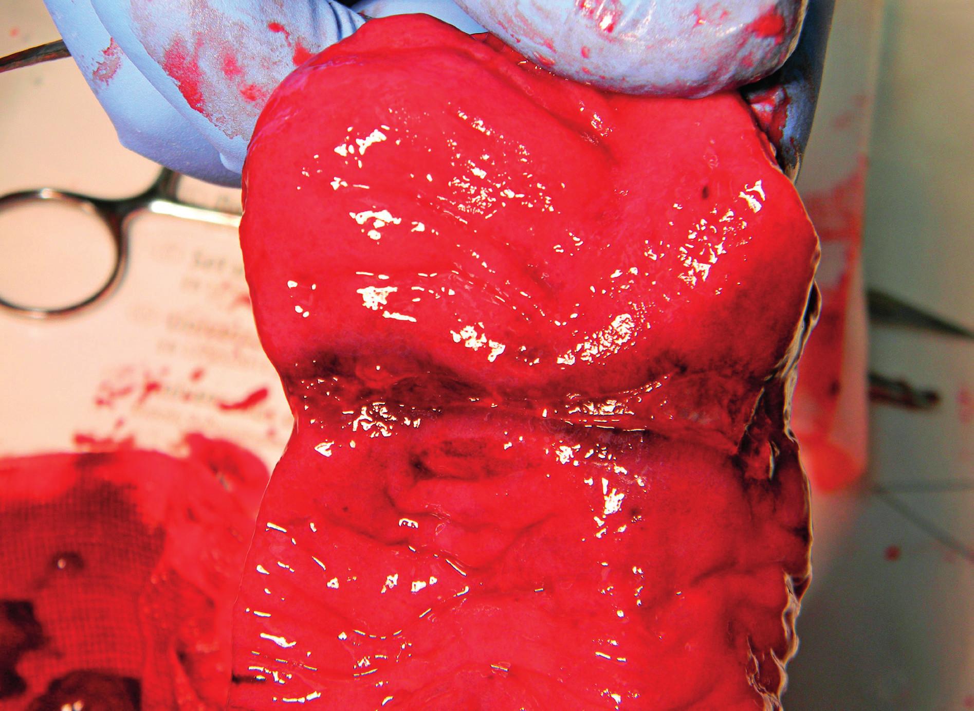 Podélně rozstřižený resekát tenkého střeva při pohledu do lumen s patrnou příčnou strikturou a s erozemi až ulceracemi sliznice (se svolením as. MUDr. L. Zemana, Klinika dětské chirurgie 2. LF UK a FN Motol). Fig. 2. An internal view of lengthwise cut part of small intestine; a transverse stricture with ulcerations and erosions of mucous membrane is clearly visible (with permission of as. MUDr. L. Zeman, Department of Paediatric Surgery, 2nd Faculty of Medicine Charles University in Prague and Motol University Hospital).