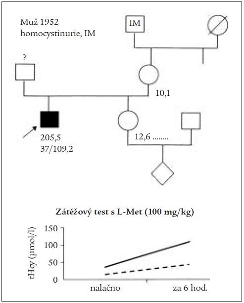 Rodokmen pacienta s klasickou homocystinurií a infarktem myokardu doplněný o výrazně pozitivní výsledek zátěžového testu s L-methioninem.