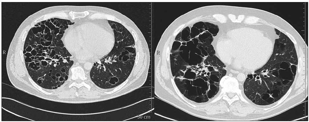 Obr. 6. Pacient narozený 1969. HRCT dne 22. 5. 2008 a 7. 12. 2009. Splývající silnostěnné cysty v konglomeráty. Tyto cysty byly důvodem ke vzniku spontánních pneumotoraxů.