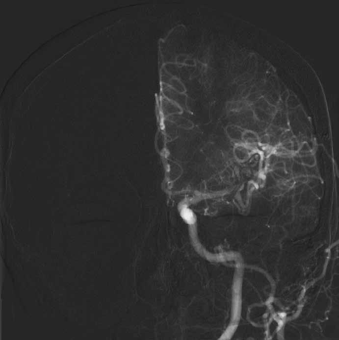 Příznivá pooperační angiografie bez plnění vaku.