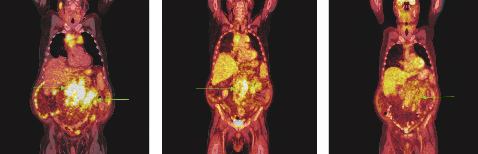 Série PET/CT snímků u nemocného s folikulárním lymfomem před léčbou, po 2 cyklech léčby a po záchranné chemoterapii. Na prvním snímku nalezen hypermetabolismus glukózy ve zvětšených lymfatických uzlinách a jejich paketech na krku, ve všech oddílech mediastina, před pravým jaterním lalokem a v břišní dutině. Pakety v mediastinu komprimují horní dutou žílu a levou brachiocefalickou žílu, do obrovského paketu lymfatických uzlin v dutině břišní jsou zavzaty pankreas a levá nadledvina. Oboustranný fluidothorax. Na snímku po 2 cyklech imunochemoterapie došlo jen k částečné regresi patologického nálezu, lymfatické uzliny i jejich pakety se zmenšily, přetrvává v nich však stále hypermetabolismus glukózy. Pacient pro tento nález a kumulaci dalších rizikových faktorů indikován k záchranné imunochemoterapii R-EDHAP. Po 2 cyklech této léčby sice přetrvávají měkkotkáňové masy v mediastinu, retroperitoneu a mezenteriu, nevykazují však hypermetabolismus glukózy.