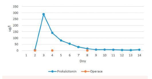 Hladina prokalcitoninu během hospitalizace