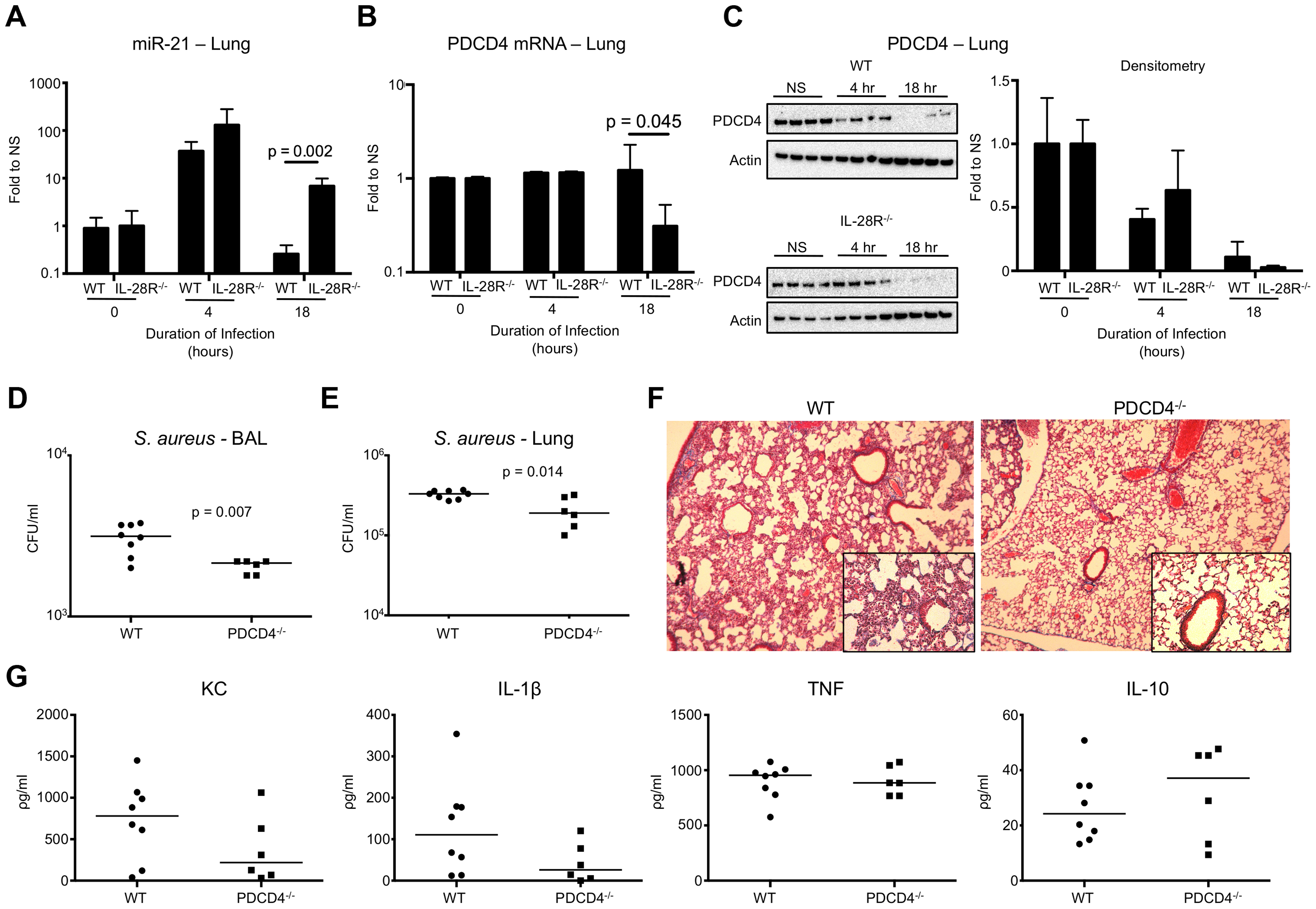IFNλ regulates PDCD4 in vivo. (A) qRT-PCR analysis of miR-21 in the lungs of WT and IL-28R<sup>−/−</sup> mice following infection with USA300, µ ± SD.