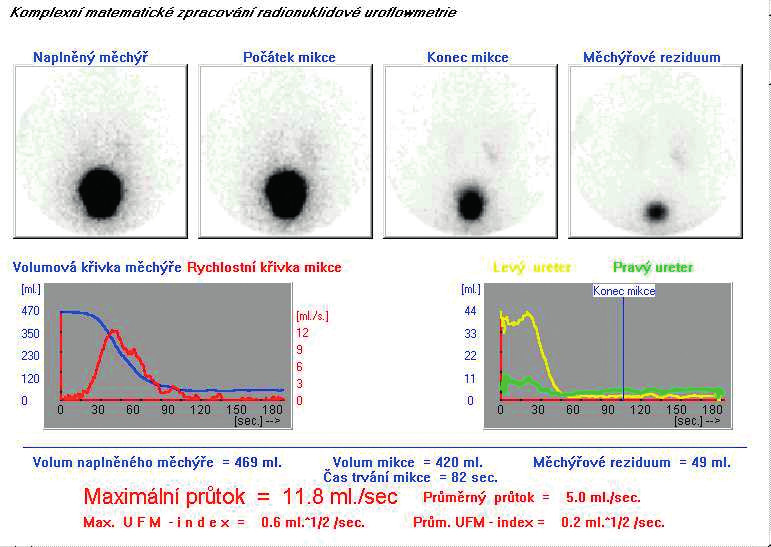 NR UFM s patologickými hodnotami močového rezidua, pomalým vyprazdňováním močového měchýře, nízkými hodnotami průtoků a indexů UFM při stenóze uretry