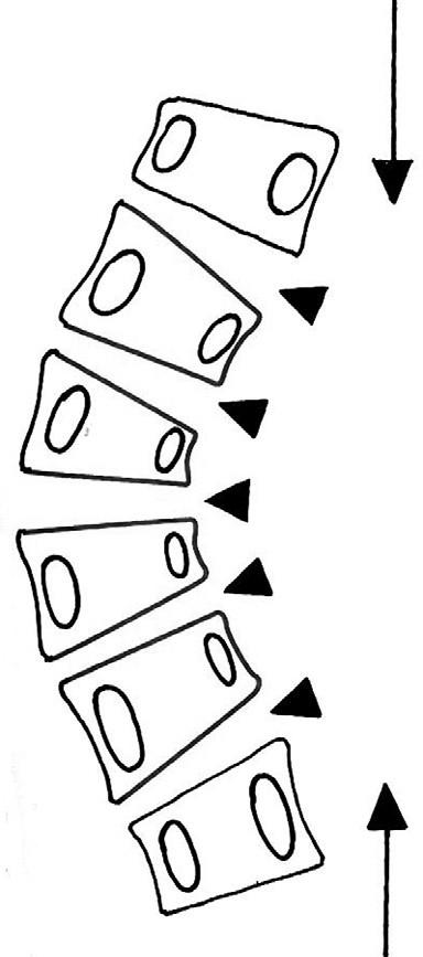 Na nerovnoměrně rostoucím obratlovém těle (diskovertebrální oblast–malé šipky) se na vznikající konkavitě křivky významně uplatňují lokální, ale poměrně značné a především dlouhodobě působící kompresní síly v axiálním směru. Ty pak dále navyšují patologický trend a progresi křivky. Správně indikovaný a naložený korzet musí tuto rotační složku axiálních sil minimalizovat (dlouhé šipky).