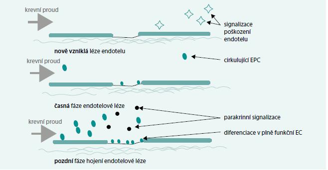 Předpokládaný význam endoteliálních progenitorových buněk v reparaci endotelové léze