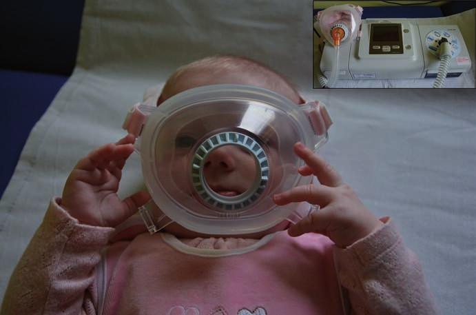 Celoobličejová maska pro použití u novorozence.