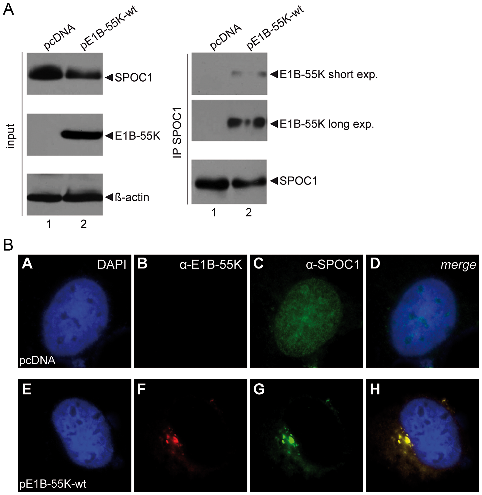 SPOC1 is a novel interaction partner of viral E1B-55K protein.