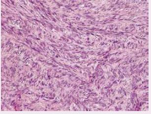 Detail vřetenobuněčné komponenty melanomu s mitotickými figurami