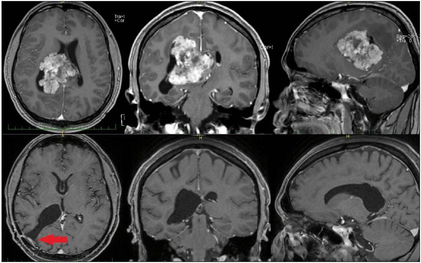MR mozku pacienta s intraventrikulárním meningiomem, nahoře vstupní, předoperační snímky. Obrázky dole ukazují stav po radikální exstirpaci. Šipka vlevo dole označuje přístupovou cestu.