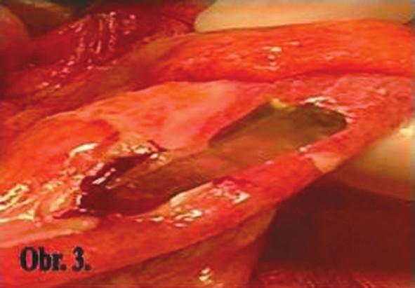 Perforačný otvor na sigme Fig. 3: Perforation hole in the sigmoid colon