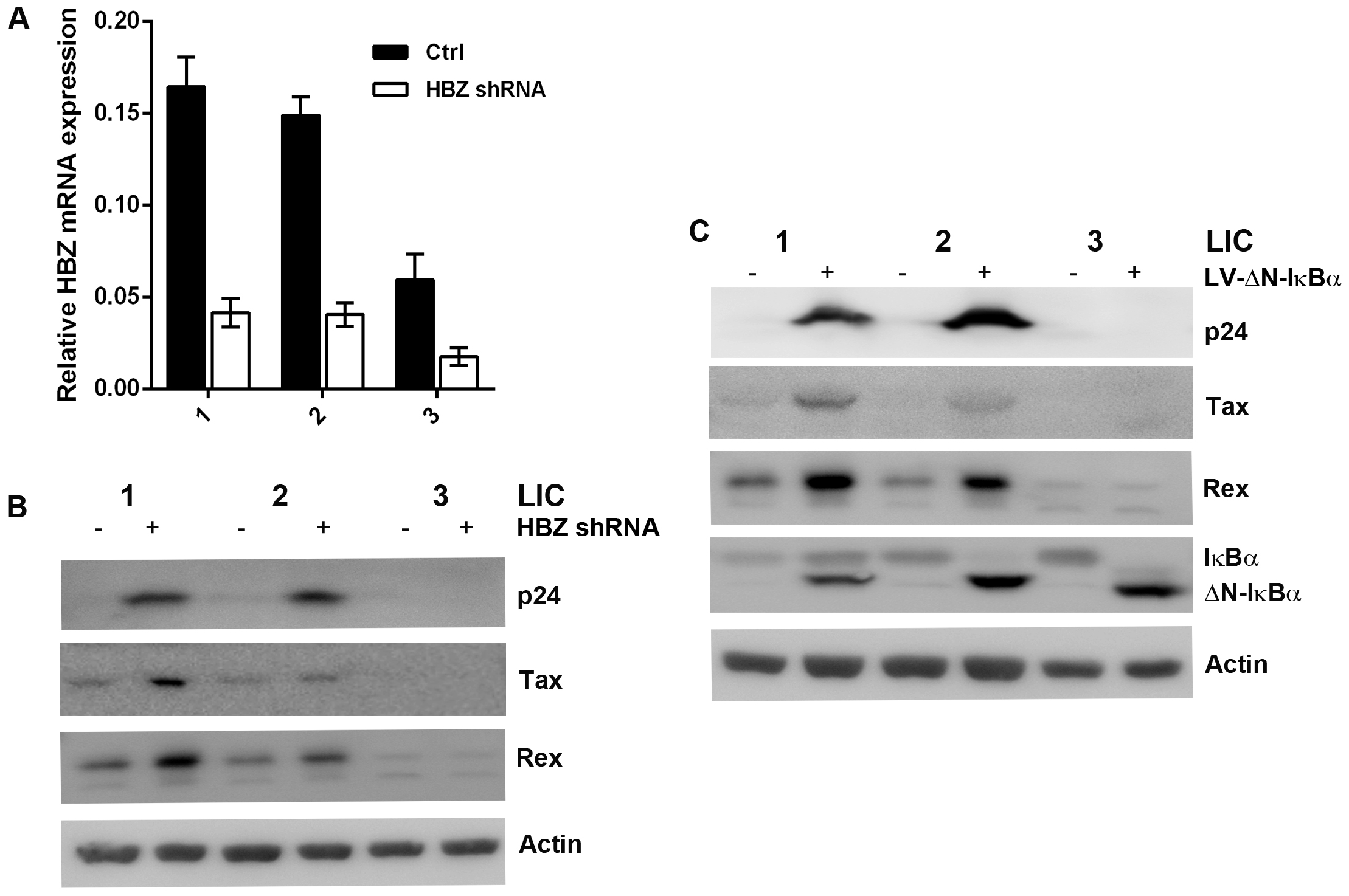 Knockdown of HBZ expression or strong inhibition of NF-κB reactivates latent HTLV-1.