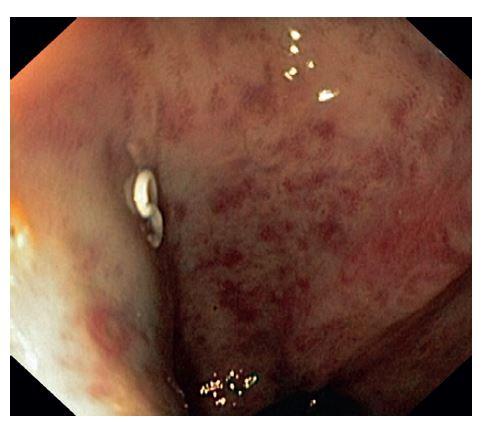 Obr. 4: Sigmoideoskopie s prokrvácenými hemoroidy a ascaridou Fig. 4: Sigmoideoscopy with haemmatose haemmoroids and pinworm