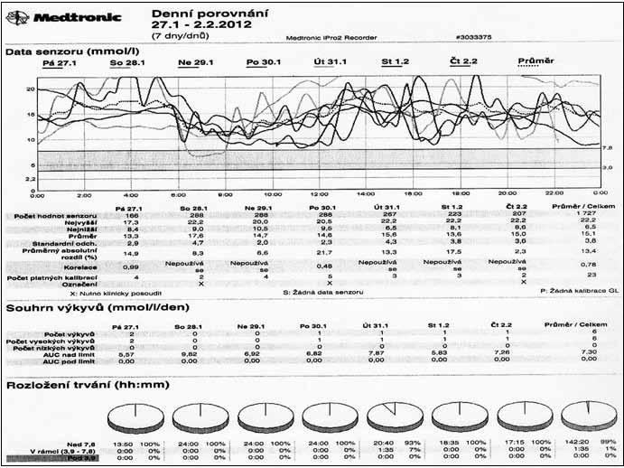 Průběh glykemií při monitorování pomocí kontinuálního senzoru u chronicky dekompenzovaného diabetika 1. typu.