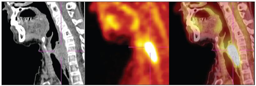 Karcinom hypofaryngu v zobrazení CT, PET a PET/CT.