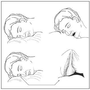 Teorie vzniku FES při OSA - během neklidného spánku dochází k everzi víčka, jeho mechanické kompresi proti polštáři, ischémii a následně jeho reperfúznímu poškození, rohovka se dostává do kontaktu s polštářem