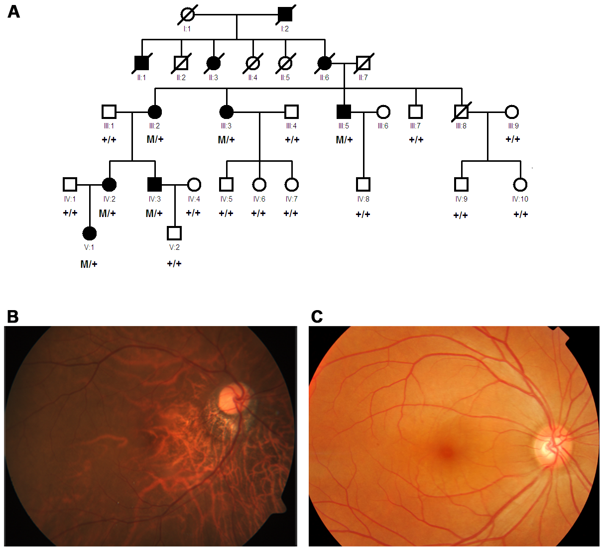 Pedigree and segregation of the mutation and fundus photograph of a patient from the family.