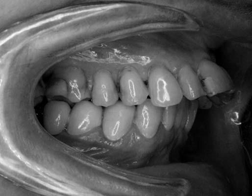 Výrazné vyklopenie – protrúzia rezákov u pacientky č. 1. Fig. 1. Severe upper incisors protrusion in patient No. 1.