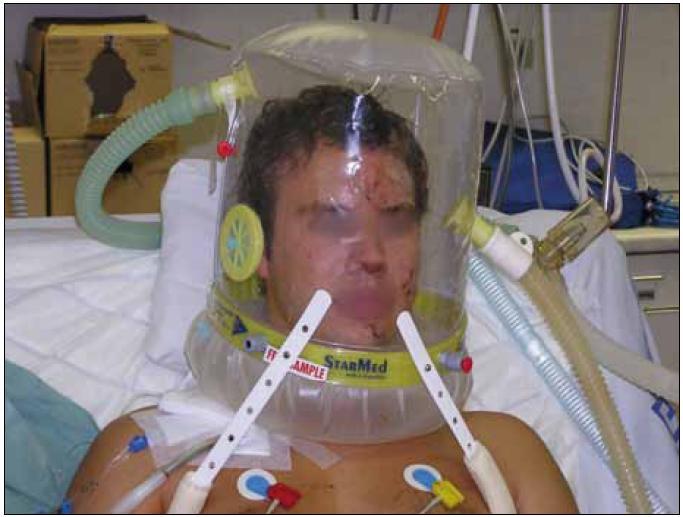 Helma pro neinvazivní plicní ventilaci.