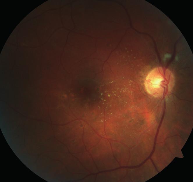 Pravé oko. Zlepšení stavu po kompenzaci krevního tlaku.