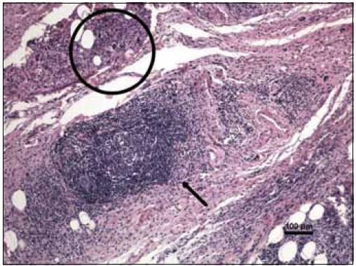 Barvení hematoxylin-eozin, původní zvětšení 100krát. Vazivově tuková tkáň očnice s převážně chronickou zánětlivou celulizací, místy s tvorbou lymfatických folikulů se zárodečnými centry (šipka). V jiných oblastech je zánětlivý infiltrát méně hustý. I při tomto relativně přehledném zvětšení jsou patrné obrovské mnohojaderné buňky Toutonova typu (v kružnici).