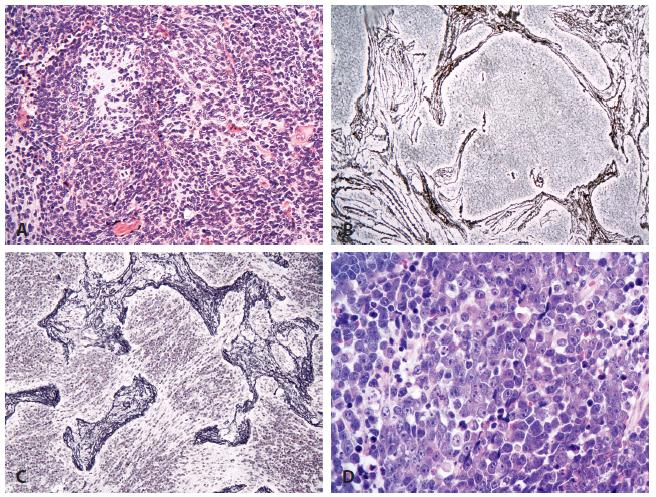 Meduloblastom.