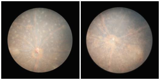 Obr. 11 a 12 Fotografie fundu 60. den po indukci EAU, dominuje atrofie sítnice, infiltráty jsou více organizované, papila zrakového nervu je ohraničená