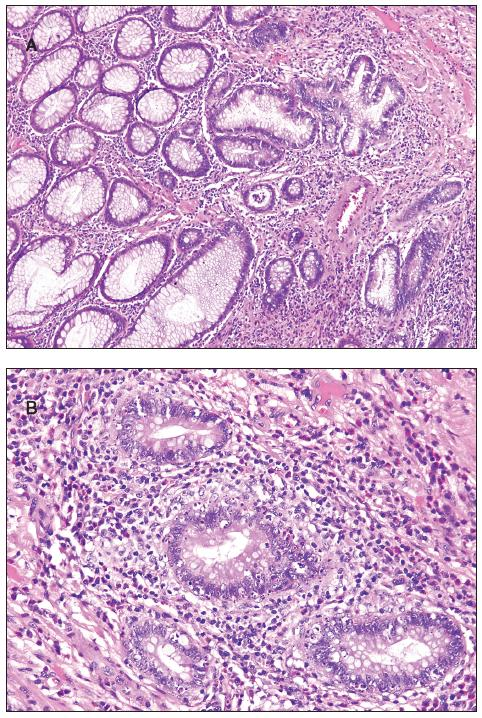 Inflammatory pseudopolyp, A - low power view with focus of cryptitis (in the center of the photomicrograph); B - increased apoptosis of the crypt epithelium in the same pseudopolyp.