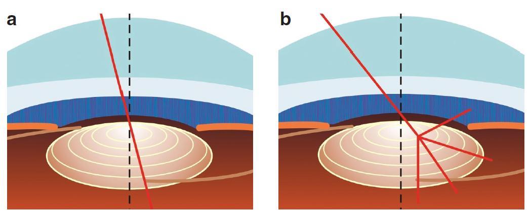 Při malém úhlu kappa prochází paprsek směřující do fovey přes centrální část čočky (a). Při velkém úhlu kappa prochází blíže hraně koncentrického prstence MIOL (b), což může způsobit výraznější fotické fenomény.