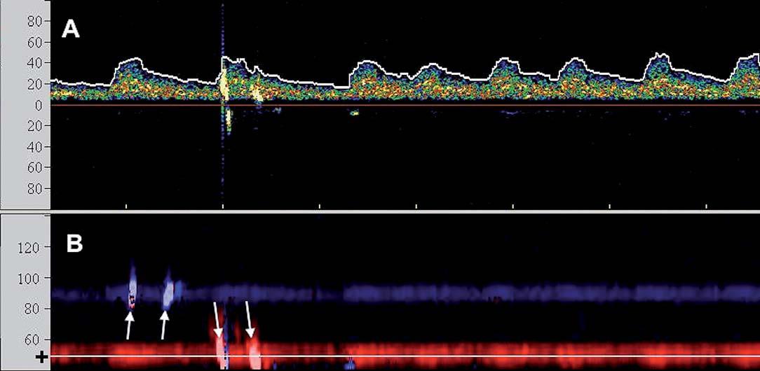 TCD monitorace CAS u pacienta s fi brilací síní: A) Spektrální (průtoková) křivka s oblastí zvoleného vzorkovacího objemu v hloubce 50 mm odpovídající M1/M2 úseku střední cerebrální arterie (škála x osy v cm/s). Zachyceny 2 HITS. B) Barevně kódované M-mode zobrazení (hloubkový řez (škála x osy v mm)) zachycující dopplerovský signál z ipsilaterální arteria cerebri media (k sondě – červeně) a v kontralaterální arteria cerebri media (od sondy – modře). Nastavená oblast zájmu spektrálního vyšetření (A) je zobrazena tenkou linkou a (+). Bilaterální HITS označeny šipkami.